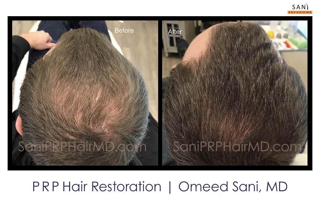 omeed-sani-hair-clinic15